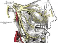 migraine oorzaken