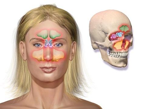 sinus ontsteking hoofdpijn